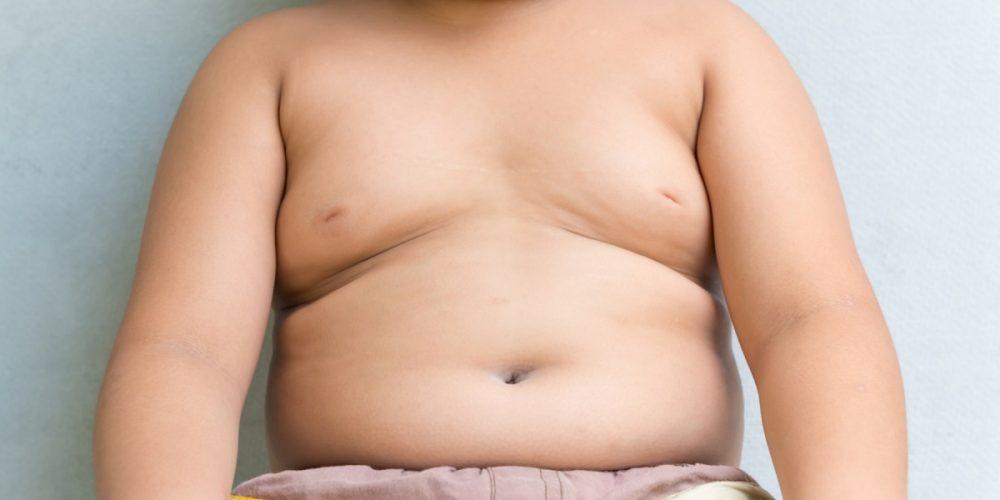L'obesità Infantile Può Complicare Una Crescita Sana