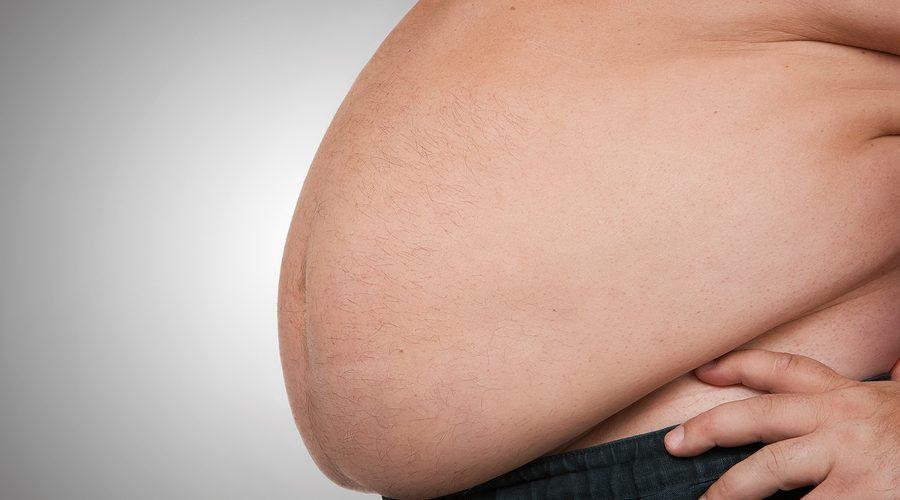 dieta per interventi di chirurgia bariatrica