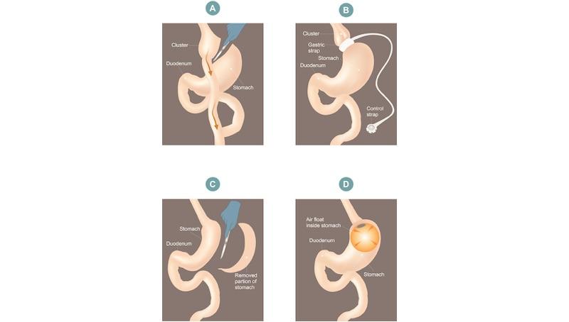 Nutrizione E Chirurgia Bariatrica