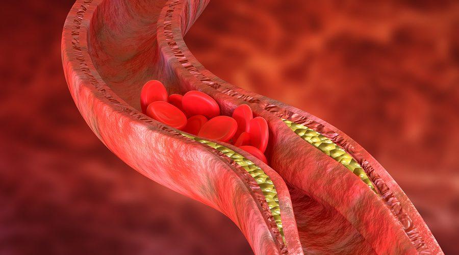 Colesterolo: Se Troppo Alto Può Essere Pericoloso Per La Nostra Salute