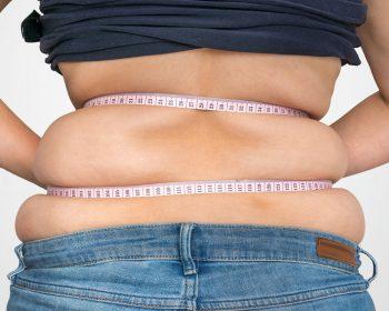 Obesità Grave