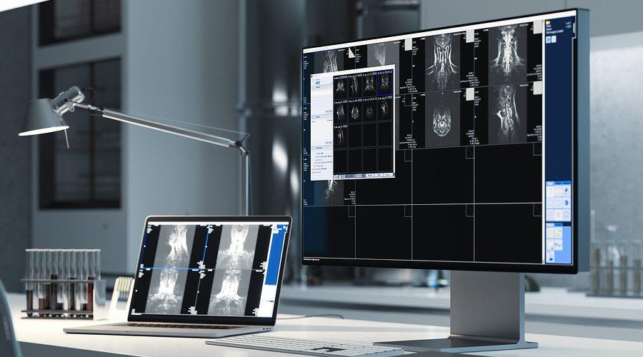 L'intelligenza Artificiale Nella Diagnosi Di Cancro: Fantascienza O Realtà?