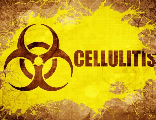 Cellulite Batterica