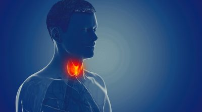Tiroidite Autoimmune Di Hashimoto